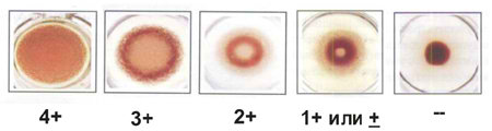 количественный РПГА на сифилис
